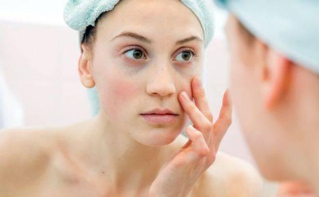 طرق طبيعية لعلاج التجاعيد والهالات السوداء تحت العين